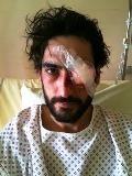 Quentin, gravement blessé à l'œil le 22 février à Nantes